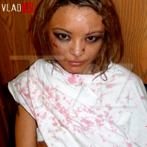 Tila Tequila mobbed, injured